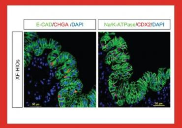 Immunostaining of organoids with cell nuclei were counterstained